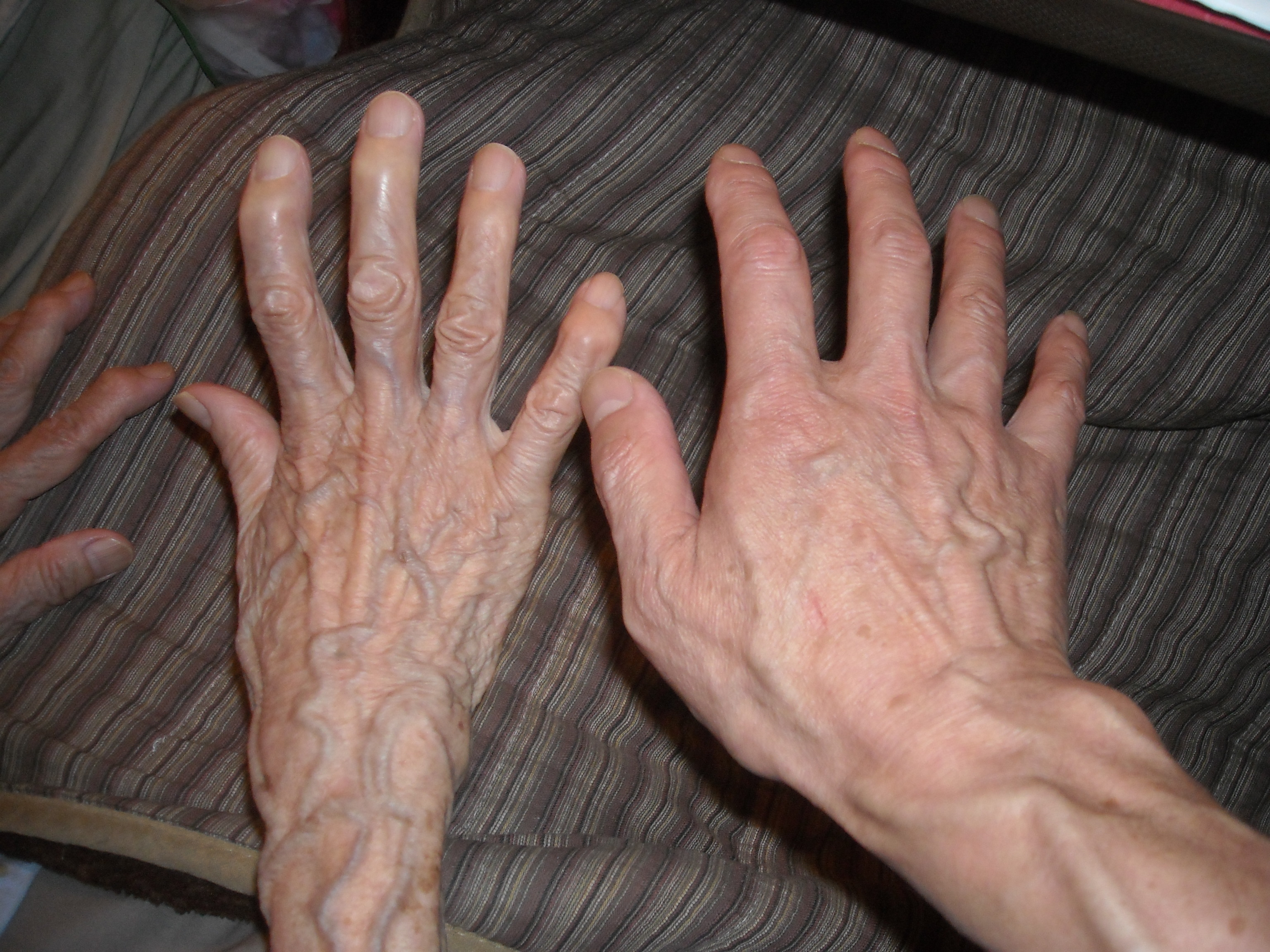 自称彫刻家の手と その母親の手   GATAピシの森   四六乃窯・友の会